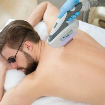 Laserska epilacija kod muškaraca